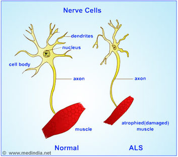 the causes symptoms and spread of amytrophic lateral sclerosis als Based on the spread of clinical symptoms in als,  implicated in amytrophic lateral sclerosis and  dismutase-1 in mice causes amyotrophic lateral sclerosis.